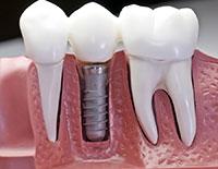 Dentist Avondale AZ Dental Implants